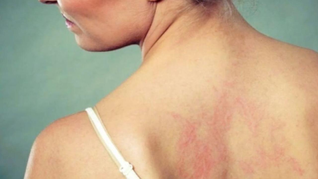 Aumentan los casos de lepra; se registran 89 casos en 18 estados de la república