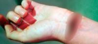 Quinceañera de San Buena se cortó el cuello y el brazo; intentó suicidarse por problemas familiares