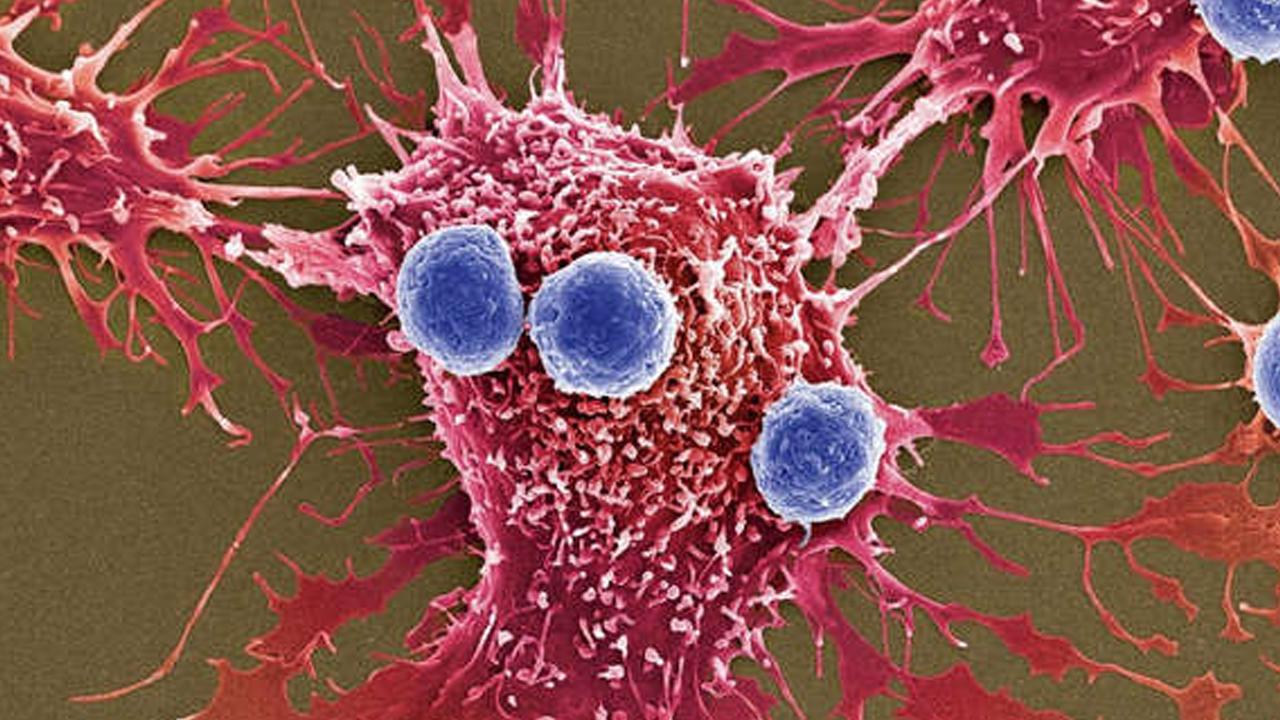 Prueban una droga que engaña las células cancerosas y las mata sin afectar el tejido sano