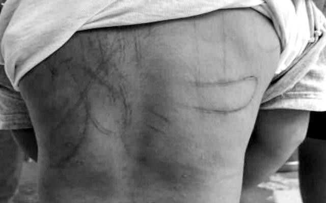 Bebé 3 años era golpeado con brutalidad; su mamita y padrastro le dejaron la espalda marcada