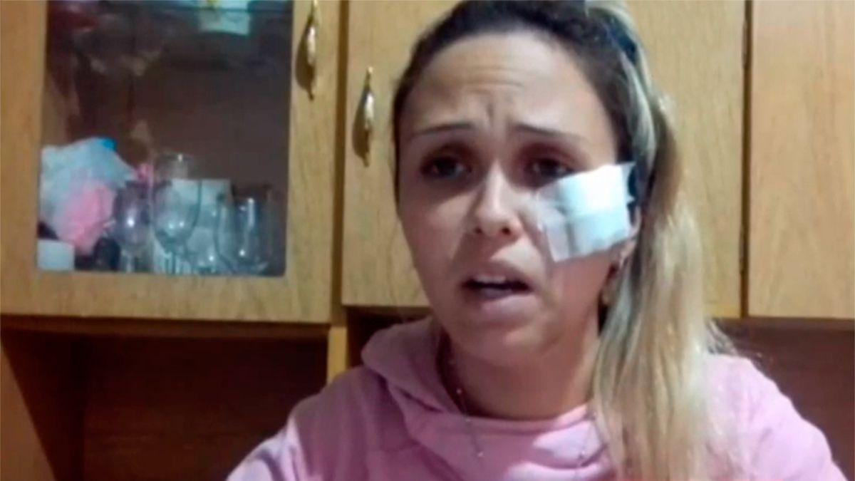 Mi hija creía que estaba muerta: Mujer fue arrastrada media cuadra por su ex pareja