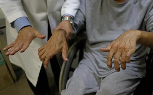 Reumatología del IMSS en Saltillo brinda atención a pacientes con artritis gotosa